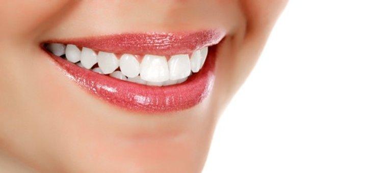 Фотоотбеливание зубов для одного или двоих в стоматологии «Посмішка 32»