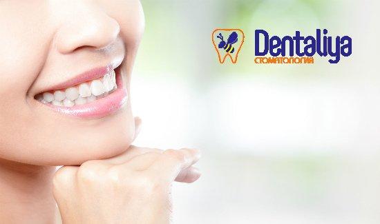 """Ультразвуковая чистка зубных отложений, Air Flow, полировка зубов пастами для одного или двоих в клинике """"Денталия""""."""