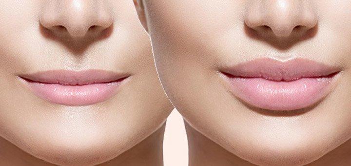 Скидка 47% на увеличение губ, заполнение носогубных морщин, моделирования контура лица в центре «Studio-Laser»